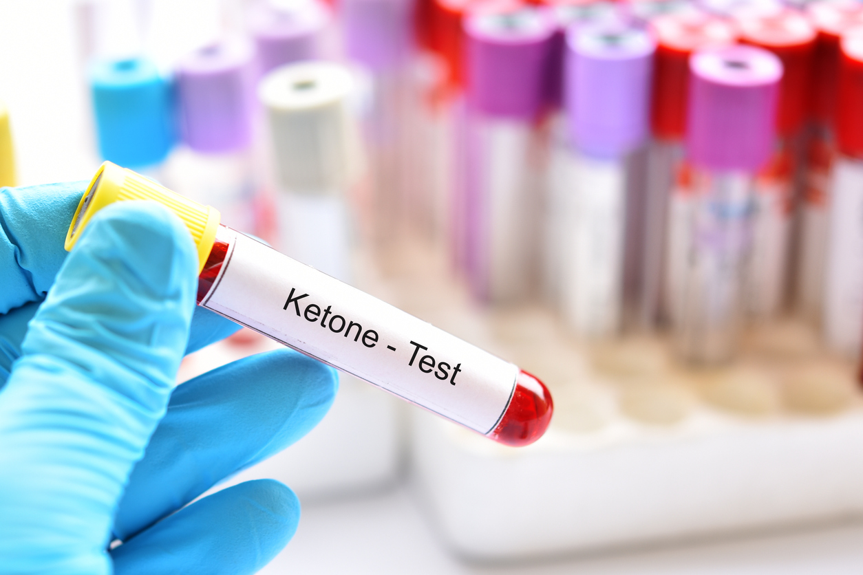 Blood sample tube for ketone test, diagnosis for diabetic ketoacidosis